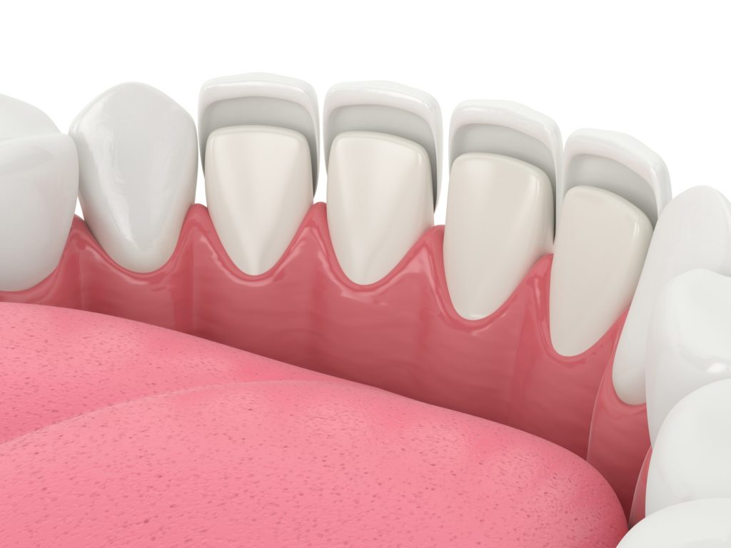 Illustration of the front row of teeth inside a mouth with dental veneers overlaid