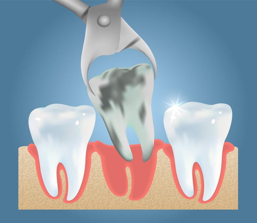 Illustration of a rotten tooth being pulled from a gum line