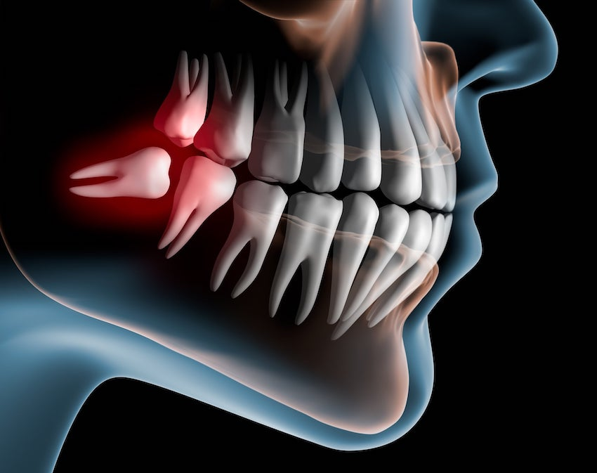 Illustration of an impacted wisdom tooth coming in sideways