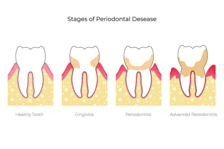 illustration of the different stages of periodontal disease