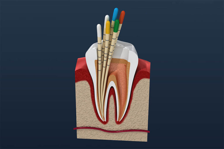 illustration of a tooth with roots obstructed, indicating that a root canal is needed